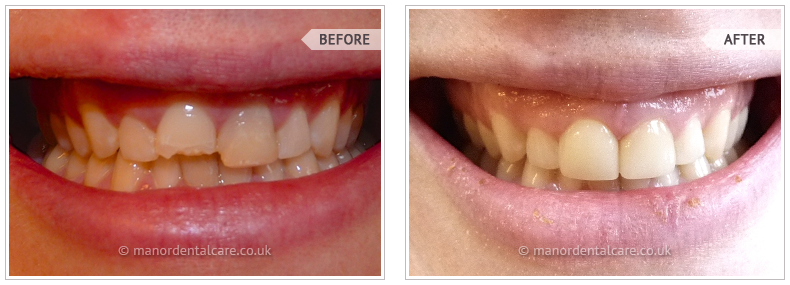 Dental Smile Gallery in Wallington - Manor Dental Care
